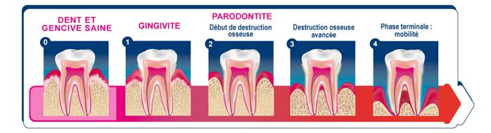 la maladie parodontale